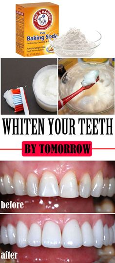 Whiten your teeth by tomorrow ==