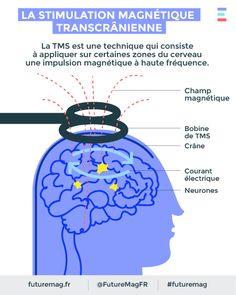 La TMS ou « stimulation magnétique transcrânienne » est une technique révolutionnaire et indolore de stimulation à travers le cerveau. Répétée sur plusieurs séances, cette stimulation permet de soigner les personnes atteintes de troubles obsessionnels du comportement (TOC). #futuremag #arte