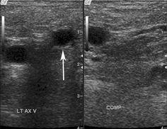 thrombus filled cephalic vein in the upper arm | upper limb, Cephalic Vein