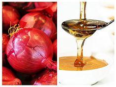 SIROP DE CEAPA pt tuse. Ceapa conține 9 compuși antiinflamatori diferiți și alte substanțe antimicrobiene,antivirale și antialergice. Cea mai importantă este quercetina. Aceștia au demonstrat activități antiastmatice, antibiotice, anticancerigene, antialergice, antiinflamatoare, antiplachetare și antitrombotice. White Wine, Alcoholic Drinks, Plants, Food, Syrup, Salads, Essen, White Wines, Liquor Drinks