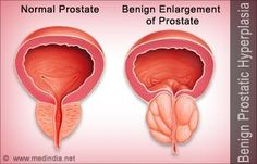 Benign Prostatic Hyperplasia (BPH) / Benign Enlargement of Prostate (BEP)