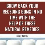 Sinus Remedies Grow Back Your Receding Gums In No Time With The Help Of These Natural Remedies Sinus Remedies, Allergy Remedies, Congestion Relief, Chest Congestion, Thinning Hair Remedies, Friendship Quotes Images, Medical Intuitive, Smoking Causes, Receding Gums