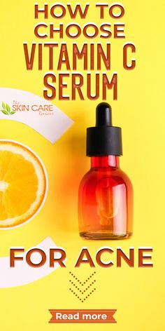 When choosing a vitamin C serum that is good for acne prone skin, you should consider some important factors. Read more about using Vitamin C serum at theskincarereviews.com. #vitamincserum #acne Best Acne Products, Skin Products, All Natural Vitamins, Best Vitamin C Serum, Vitamin C Benefits, Back Acne Treatment, Clear Skin Tips, Essential Oils For Skin, Acne Spots