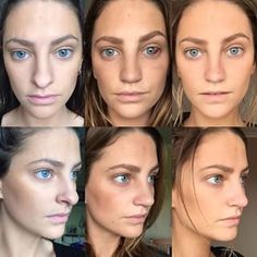 nose jobs before and after profile - Google Search