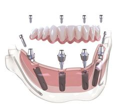 Well-to-do Dental Surgery Dentistry Best Dental Implants, Teeth Implants, Teeth Whitening System, Natural Teeth Whitening, Dental Photography, Dental Posters, Smile Dental, Dental Care, Perfect Teeth