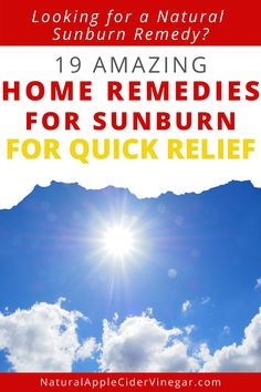 Check out this home remedies for sunburn recipe. This article contains a natural recipe to relieve sunburns. Use this recipe as a natural way to relieve sunburns. Check out this great remedy to naturally relieve sunburns without using harmful ingredients that are bad for you. #sunburns #sunburnremedy #natrualcare #homeremedy Natural Remedies For Sunburn, Sunburn Remedies, Aloe Vera Lotion, Hydrocortisone Cream, Sunburn Relief, Natural Recipe, Inflammation Causes