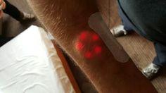 Northstar v1 implantable technology. Bodymodification biohacking