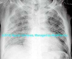 10. 間質性肺炎 症例090:特発性肺線維症の急性増悪 胸部単純X線写真,『コンパクトX線アトラスBasic 胸部単純X線写真アトラス vol.1 肺』 Radiology