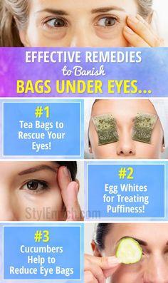 Dark Eye Bags - How to Get Rid of Eye Bags : Effective Remedies to Banish Puffy Eyes! Dark Eye Bags - How to Get Rid of Eye Bags : Effective Remedies to Banish Puffy Eyes! Warts On Hands, Warts On Face, Get Rid Of Warts, Remove Warts, Reduce Eye Bags, Skin Burns, Eyes Problems, Layers Of Skin, Puffy Eyes