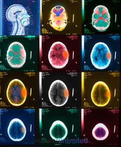 CT scans of a boy who fell and hit his head causing a subdural hematoma and a collection of blood within the brain.
