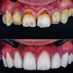 Teeth Shape, Happy Smile, Teeth Whitening, Sushi, Dental, Ethnic Recipes, Food, Tooth Bleaching, Essen