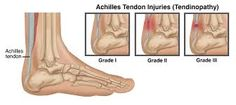 Achilles tendinopathy is an irritation of the Achilles tendon. Achilles tendon pain is one of the most common types of pain felt behind the heel and up the back Achilles Tendinopathy, Physical Therapist, Physics, Achilles Tendon, Therapy Ideas, Cardio, Fitness, Cycling, Physique