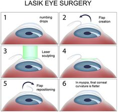 Lasik (Lasek) is a highly popular form of eye surgery and is used to correct a range of refractive errors, such as astigmatism, myopia and hyperopia. Find out more on how Orbit Eye Hospital can treat you with Lasik Eye Surgery. Eye Treatment, Yeast Infection On Skin, Nail Infection, Fungal Infection, Chronic Dry Eye