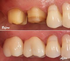 Decayed molars restored with bonded full contour zirconia crowns. Call our Glendale dentist to schedule a dental appointment! *All surgeries and restorations performed by Dr. Leo Aghajanian D. Teeth Implants, Dental Implants, Protésico Dental, Dental Photos, Tooth Extraction Healing, Crown For Kids, Restorative Dentistry, Tooth Replacement, Root Canal Treatment