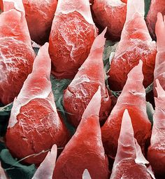 This is the surface of the human tongue, under a coloured scanning electron micrograph (SEM). The spiky cones are backward facing projections called filiform papillae, which sense pressure. The filiform papillae don't contain taste buds but are the most numerous of the papillae, covering most of the dorsum (upper surface). The papillae have a scaly appearance because they are constantly shedding their top layer of skin.