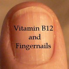 Fortunately vitamin and fingernails are connected. Fingernails show hidden health issues from low levels. Natural Health Remedies, Herbal Remedies, Natural Medicine, Herbal Medicine, Low Vitamin B12, Vit B12, Vitamin B 12 Foods, Vitamin B12 Benefits, Healthy Hair Tips