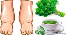 Swollen Feet Remedies This Powerful Homemade Tea Cures Swollen Legs in few Days Natural Health Remedies, Herbal Remedies, Natural Cures, Parsley Tea, Water Retention Remedies, Natural Diuretic, Foot Remedies, Homemade Tea, Unhealthy Diet
