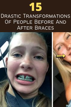 Do you still remember the time when you had to wear dental braces? If you didn't have to, then you can consider yourself lucky! People are prescribed to get braces when they need some dental corrections. The most common use of dental braces is to correct crooked teeth, overbites, under-bites, and be able to align the upper or lower jaws. It's better to treat dental issues while you're still young, but whatever age you are; you can still ask a professional on how they can correct your dental…