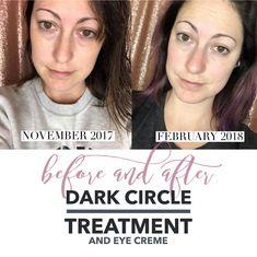 The best Dark circle treatment I've ever come across!! #senegence #darkcircles #karablakemanphotography #DarkCirclesMakeup Dark Circles Makeup, Dark Circles Under Eyes, Best Cereal, Dark Circles Treatment, Improve Yourself, Skin Care, Treats, Good Things, Beauty
