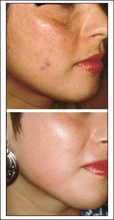 How to Get Rid of Face Scratches?