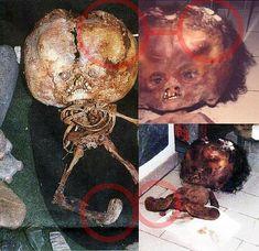 "Extremely Deformed People | forgetomori » ""Alien Skeleton"" case solved"