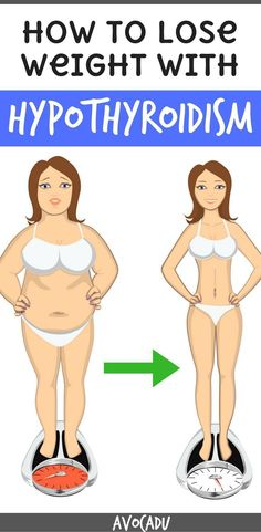 How to lose weight with Hyperthyroidism | Diet Plans for women to lose weight with thyroid problems | http://avocadu.com/lose-weight-with-hypothyroidism/