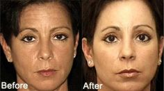 What to Do and Expect Before and After Anti-Wrinkle Treatments such as Botox