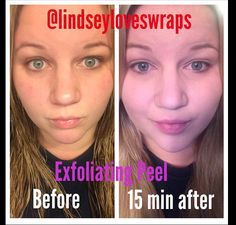 My personal results with the new exfoliating peel!! Spa treatment at home! My skin is so soft and smooth!  240-446-8689 Lindseyloveswraps@gmail.com Lindseyloveswraps.com