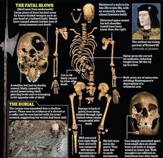 Richard III's skeleton, deconstructed