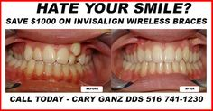 Braces Before And After, Dental Health, Dentistry, Oral Health, Healthy Teeth
