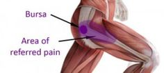 trochanteric hip bursitis is an overuse injury at the hip joint caused by repeated friction on a small sack of fluid, known as a bursa on the outer hip hip problems runners Hip Flexor Pain, Bursitis Hip, Tight Hip Flexors, Hip Pain, Back Pain, Tight Hips Stretches, Outer Hip Stretches, Referred Pain, Hip Problems