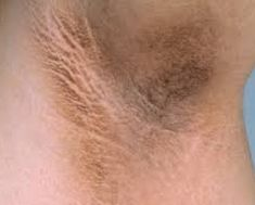 Effective natural cures and natural home remedies for dark underarms beauty tips. Skin whitening can easily be done by resorting to some simple home remedies. Acantosis Nigricans, Armpit Whitening, Dark Armpits, Tips Belleza, Health And Beauty Tips, Health Tips, Skin Problems, Natural Cures, Face And Body