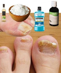 Natural Medicine Vicks Vaporub Tips Health White Out Tape Nails Fingernail Health Nail Care Home Remedies Health Remedies, Home Remedies, Natural Remedies, Toenail Fungus Remedies, Fungal Nail, Nail Treatment, Keto Diet For Beginners, Tea Tree Oil, Feet Care