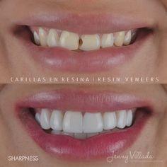 SMILE DESIGN (RESIN VENEERS) Dental, Smile Design, Resin, Latin Music, Teeth, Dentist Clinic, Tooth, Dental Health