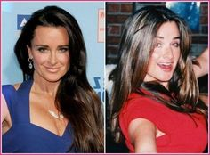 Kyle Richards' of Real Housewives of Beverly Hills Glow up see her beauty secrets for hair, makeup and skin care! Types Of Plastic Surgery, Celebrity Plastic Surgery, Kyle Richards Age, Kyle Richards Plastic Surgery, Beauty Secrets, Beauty Hacks, Beauty Ideas, Beverly Hills Plastic Surgery, Plastic Surgery Before After