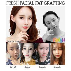 Surgery facial clinics plastic