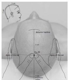 Hundred Convergences is a potent point for earache that is widely used in traditional Chinese medicine. acupressure 8 Potent Acupressure Points for Earache Treatment Ear Acupressure Points, Acupressure Therapy, Acupuncture Points, Acupressure Treatment, Examen Clinique, Reflexology Massage, Facial Massage, Massage Therapy, Traditional Chinese Medicine