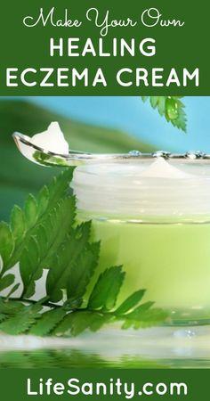 Make Your Own Healing Eczema Cream | Life Sanity