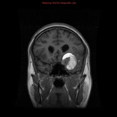 Intracranial dermoid cyst | Radiology Reference Article | Radiopaedia.org