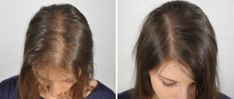 This method will not only make your hair black but help your scalp to grow new hair also and cure baldness naturally.Be sure to use this regularly. First Ingredient: Kalonji It is also called Mangrel, Nigella sativa, black cumin seeds. It is also used in many pickles and also used in medicines. It is rich …