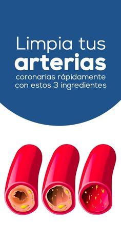 Remedio para arterias tapadas. Limpia tus arterias coronarias rápidamente con estos 3 ingredientes que ya tienes en tu cocina.