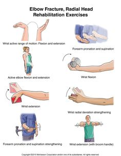Hand Therapy, Massage Therapy, Broken Elbow, Humerus Fracture, Elbow Exercises, Pilates, Nerve Palsy, Radial Nerve, Physical Therapy Exercises