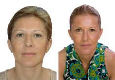 How To Look Younger in 10 Minutes Per Day  with a simple and natural method: Facial Rejuvenation Acupressure