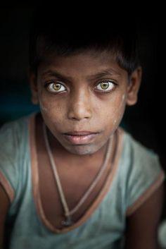 Big beautiful eyes of Street child, Kolkata  India