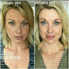 What if you had the confidence to leave the house makeup-free? Make your New Years' resolution the year you will take care of your skin! Reduce the appearance of wrinkles and fine lines. Reverse sun damage and remove dark spots. Brighten and even your skin's complexion! What are you waiting for? Click for more info, and order now, so you can recieve your new skin care routine in time to start the New Year! #rodanandfields #skincare #lookgoodfeelgood