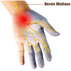 Entérate de que es el Síndrome del #Tunelcarpiano para estar atentos e informados: http://www.linkverde.com/secretos-de-salud/que-es-el-sindrome-del-tunel-carpiano/