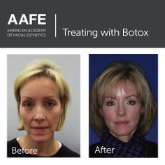 Treat fine lines with Botox Facial Esthetics, Botulinum Toxin, Crows Feet, American