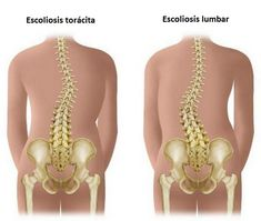 Scoliosis is a condition where the spine is either curved too far forward or backward. It can occur at any age, but it usually develops in children after age Scoliosis causes the vertebrae to . Home Remedy For Headache, Headache Remedies, Scoliosis Exercises, Back Exercises, Stretches, Scoliosis Quotes, K Tape, Coconut Benefits, Massage Tips