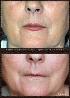 Coloration des lèvres pour restructurer la forme et donner de l …