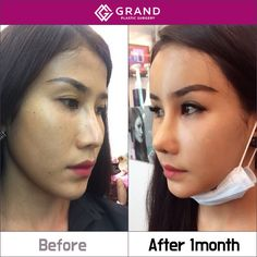 Look more natural by Grand's Rhinoplasty Revision and looking younger after Grand's Full face Fat graft.  Free consultation :  Grand Plastic Surgery  Tel: (+82) 70-7119-1580  Email: grandps.en@gmail.com  Facebook: http://facebook.com/grandplasticsurgery  Webstie: http://eng.grandsurgery.com/